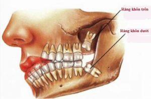 Điều trị tình trạng đau răng khôn ở người trưởng thành 1