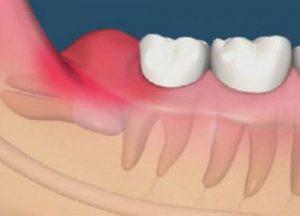 Điều trị tình trạng đau răng khôn ở người trưởng thành 2